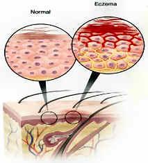 Atopitchesky la dermatite chez les enfants les analyses